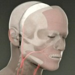 facetransplant