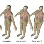 Obese Patients Face Higher Radiation Exposure From CT Scans—But New Technology Can Help