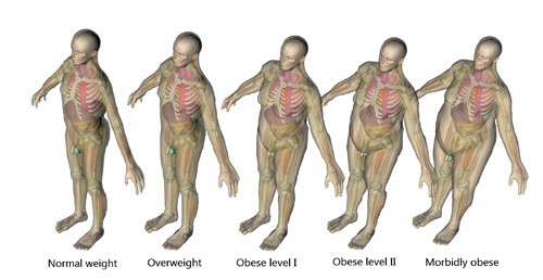 Existing technique could accelerate metabolism to fight obesity