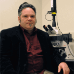 15q Duplication Syndrome