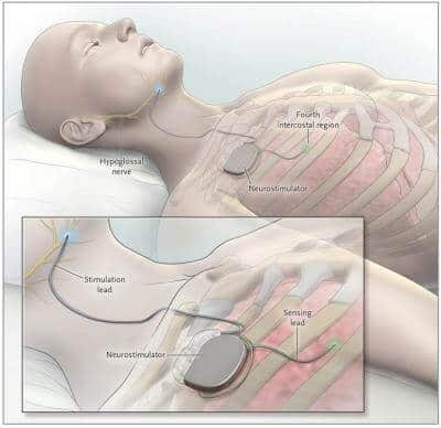 New implant can reduce sleep apnea episodes by 70 percent