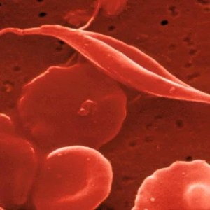sicklecell
