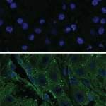 PRKACA-in-normal-cells