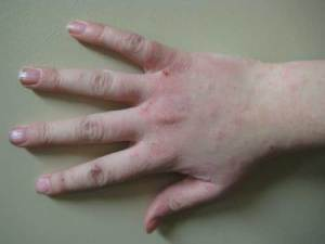 Human_hand_with_dermatitis