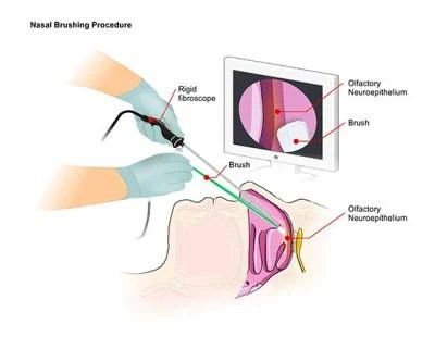 NIH and Italian scientists develop nasal test for human prion disease