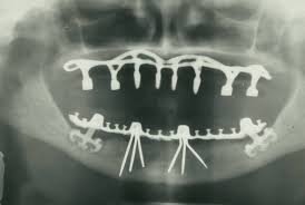 Widely used depression drug associated with dental implant failure