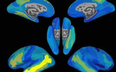 FDA allows marketing of first-of-kind computerized cognitive tests to help assess cognitive skills after a head injury