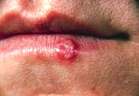 Can You Get Herpes On Your Lip? 1