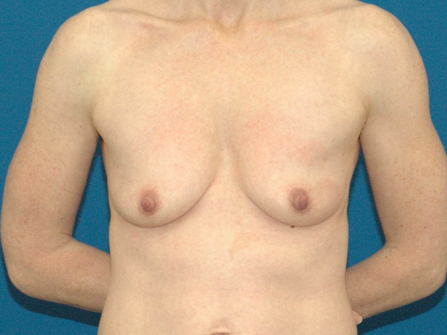 photo of before breast implant and breast lift