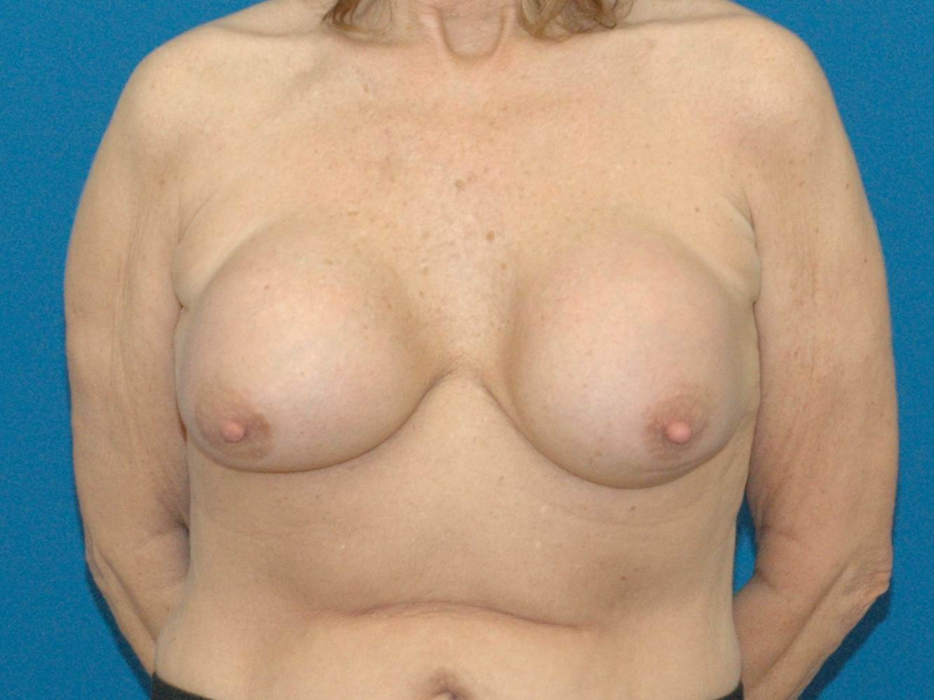 photo of before implant revision