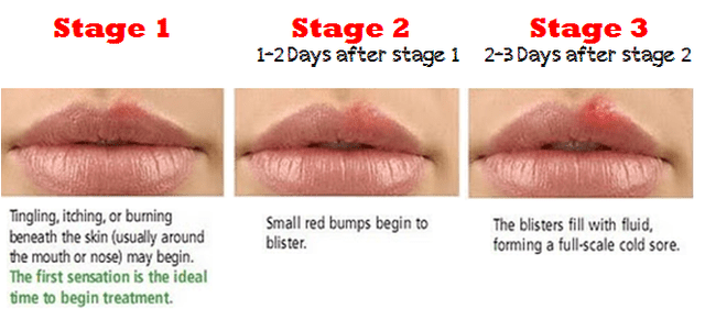 Can Chapped Lips Mimic Oral Herpes 2