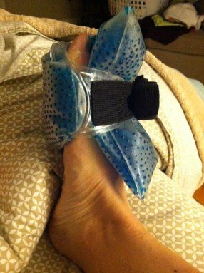 foot injury plantar plate recovery