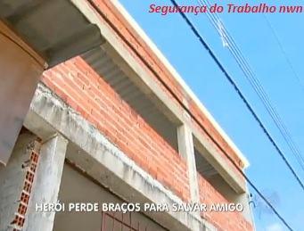 HOMEM ARRISCA A VIDA PARA SALVAR AMIGO E PERDE OS DOIS BRAÇOS