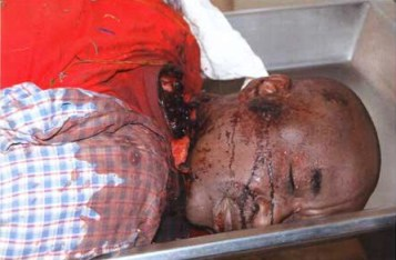Rwandan Green Party VP Andre Kagwa Rwisereka beheaded 071410, closeup