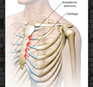 This is Costochondritis: inflammation of where the ribs attach to the strerum.