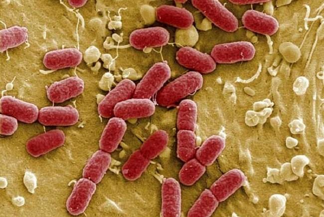 10 Keshilla Si Ti Parandalojme Infeksionet