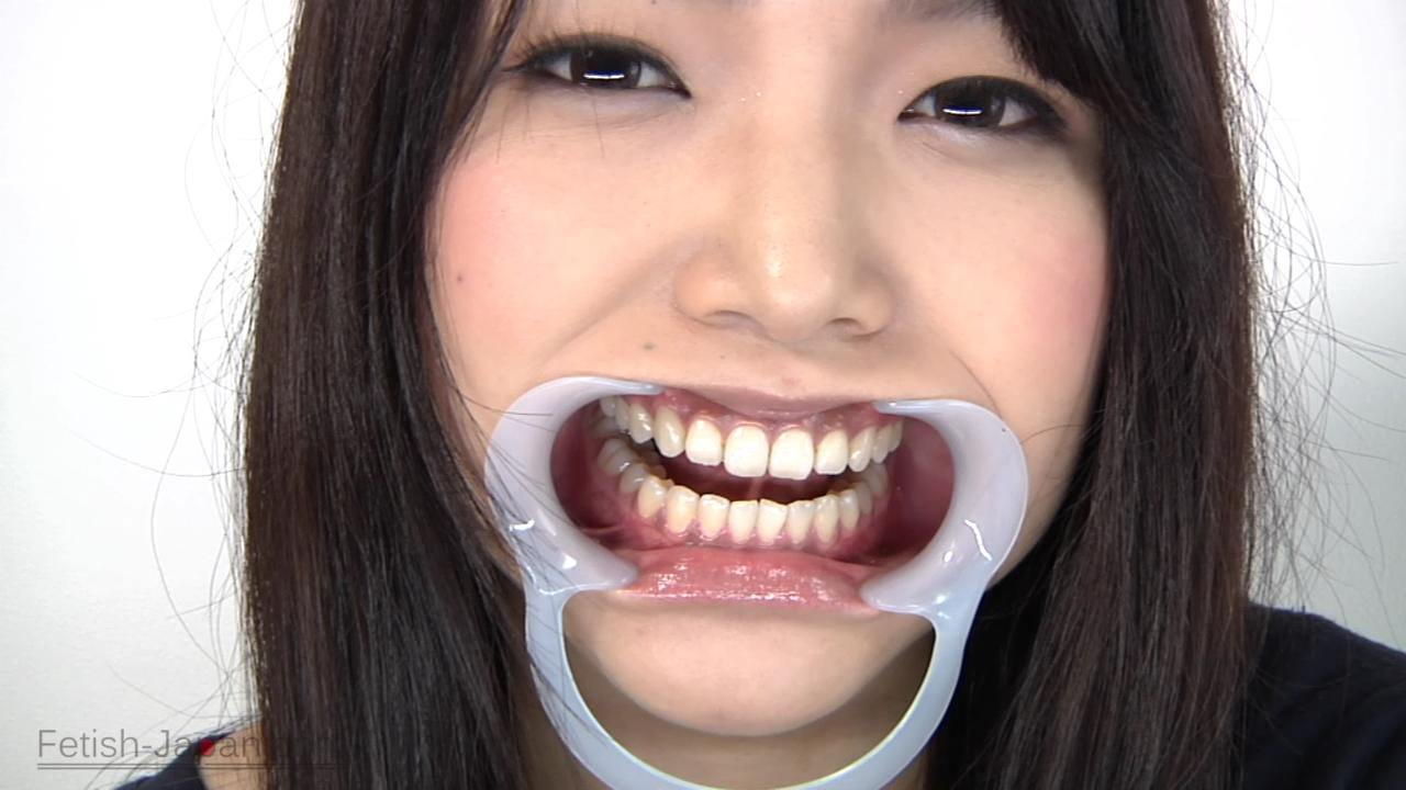歯観察/篠めぐみ (4)