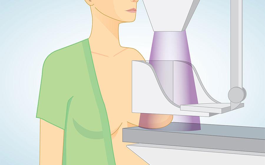 mamografia-rastreio