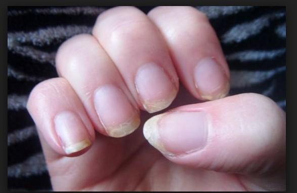Aloe Vera For Nails