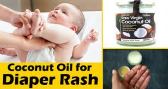Coconut oil On The Diaper Rash