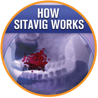 How Sitavig Works