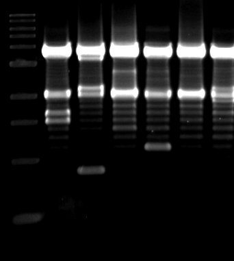 Visualizing DNA on a DNA gel. While the techniques to visualize and analyze DNA are commonplace, our understanding of what a mutation means in the context of the genome is still lacking.