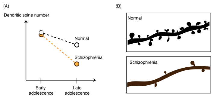 "Figure 3. (A) While a decrease in synapse number during late adolescence and early adulthood is a part of normal development, patients of schizophrenia show a greater loss in synapses. (B) A simple method for determining synapse number in post-mortem brains is to observe the number of ""dendritic spines"" –the physical structures associated with certain synapse types. As illustrated, patients of schizophrenia show an abnormal decrease in dendritic spine density on some neuron types. It was demonstrated that increasing expression of C4 in mice caused a similar result, alluding to a causal role of C4 in schizophrenia."