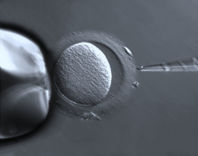 Human egg cell about to undergo in vitro fertilization [Image: 'Oocyte with Zona pellucida' from ZEISS Microscopy]