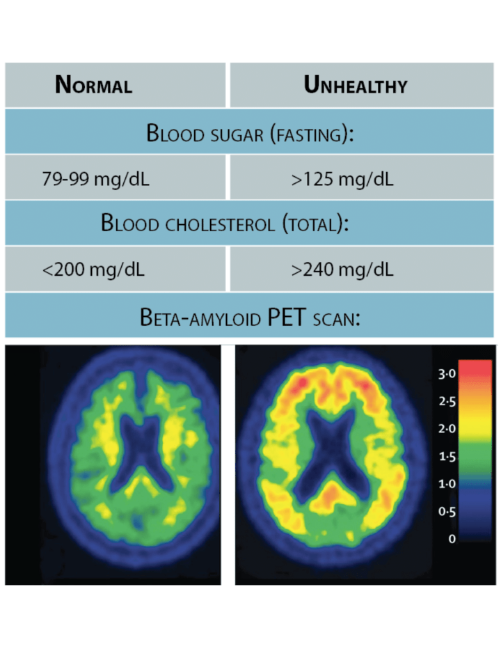 Figure 2: Biomarkers provide quantitative ways to describe a patient's health or disease. Well established ranges for healthy vs unhealthy blood sugar and blood cholesterol help doctors decide which patients need treatment. Beta-amyloid detected by a PET brain scan can track an Alzheimer's patient's disease.