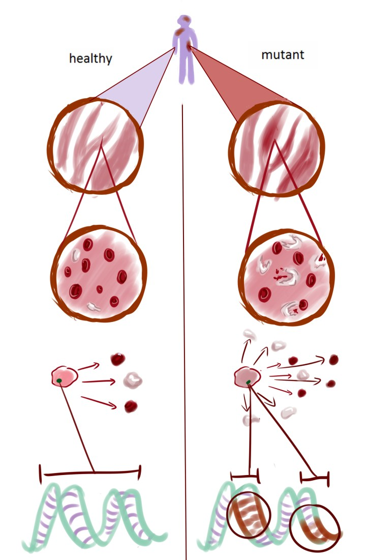 "Figure 2: Every individual has thousands of blood-forming stem cells in their bone marrow. Sometimes, these stem cells can mutate to develop blood cancers known as leukemia. In the past, it was hard to differentiate the mutated, cancer-causing stem cells depicted in the figure on the right from others the left, but scRNA-seq makes this possible. By providing a ""zoomed in"" view of the mutations in stem cells from each patient, scientists can gain a better understanding of which mutations drive disease and how to better target these cancerous cells."