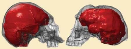 """Homo_sapiens_microcefálico_y_Homo_floresiensis"""