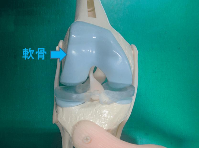正常な膝の軟骨の模型 水色の場所が軟骨