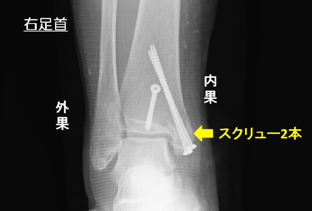 右足首の内果骨折 手術後のレントゲン 2本のスクリューで固定している もう1本のスクリューは他の骨折を固定している