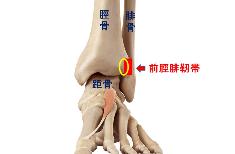 脛腓靭帯の剥離骨折の図 黄色円の部分で靭帯の付着部から骨がはがれてしまう
