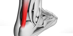 アキレス腱の痛みがある様子が分かる模型