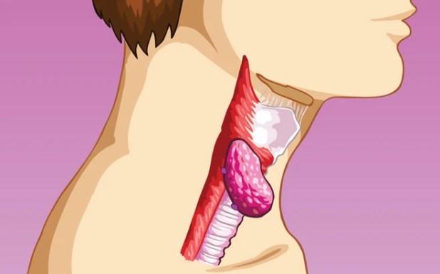 7 loại ung thư dễ chữa khỏi nhất hiện nay - Ảnh 7.