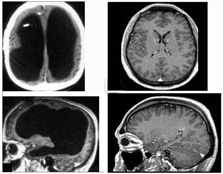 Мозок француза і здорової людини