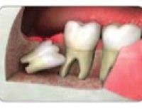best dentist in Mumbai