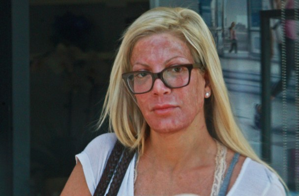 "PREMIUM EXCLUSIVE: Shocking True Tori photos! Tori Spelling leaves Calabasas Medical Spa looking red and raw after a chemical peel, waxed eyebrows and a microdermabrasion facial. The 42-year old reality star parked in the 20 minute zone despite being in the spa for hours. Tori was still sporting a medical 'sleeve' on her right arm after a burn in April reportedly forced her to get skin grafting. ""Broke"" Tori and her four children recently returned from a week long vacation at the upscale Omni La Costa Resort and Spa in Carlsbad Calif. Guess the spa didn't have all the beauty treatments she wanted.  **NO WEB USE UNTIL TUESDAY, AUGUST 25, 2015, 8 AM CALIFORNIA TIME (PDT)**.  Pictured: Tori Spelling Ref: BLNKP1133 082215 Photo credit: Boss/blink-news.com Blink News Los Angeles 424-270-9694 go@blink-news.com"