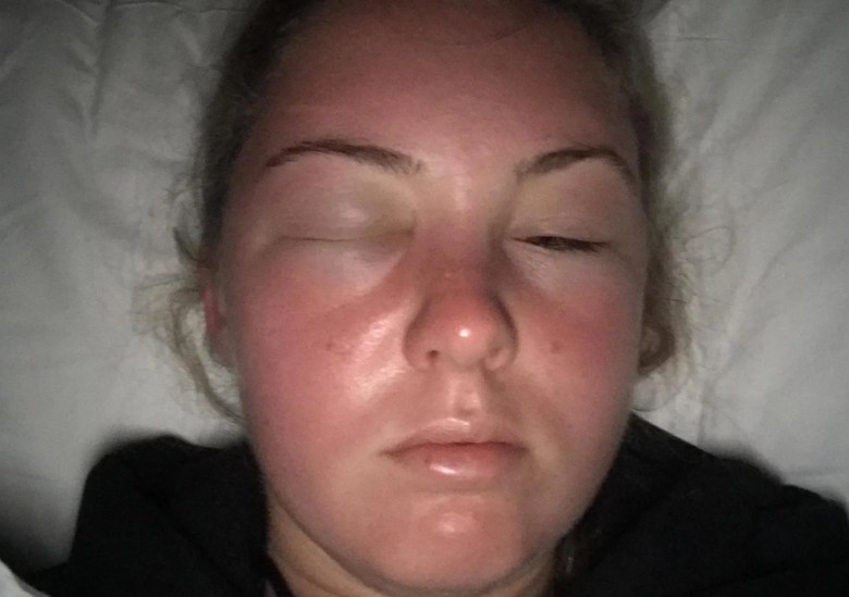 Holly Barrington S Face Swelled Uncontrollably Overnight After A Day In The Sun Tenerife