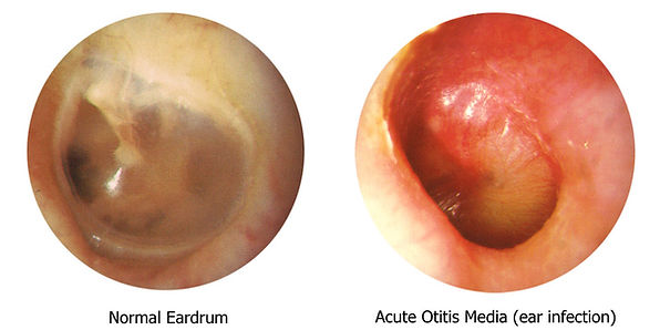 When the middle ear is infected, this hollow space becomes filled with pus and disrupts sound transmission 3