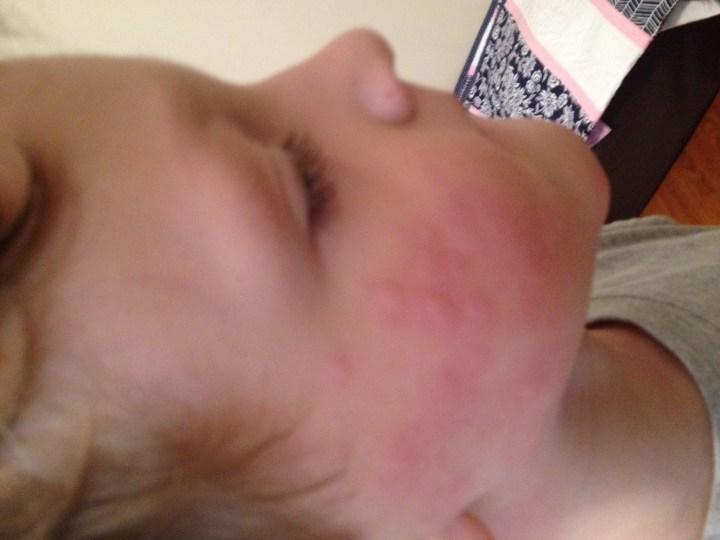 Random Hives in Kids