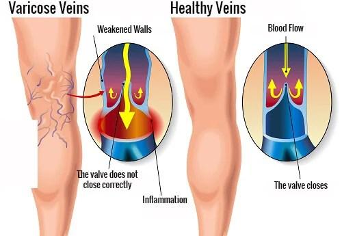 varicose-veins copy