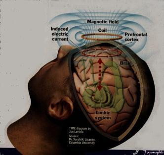 rtms_brain.jpg