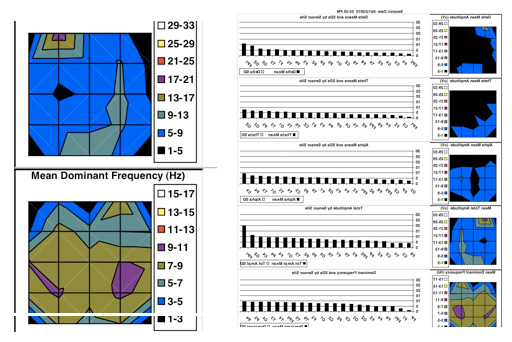 Lens Maps after 45 Treatments