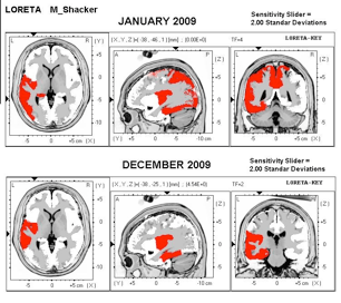 LORETA Images of Michael's Brain a Year Apart + 25 LENS treatments