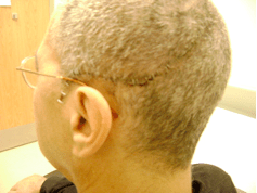Michael's Skull Plate Surgery