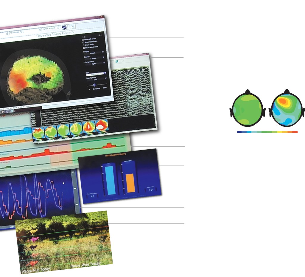 w-BrainBioMarkers-neurotherapy-982
