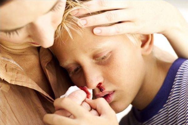 Mimisan bisa membahayakan jiwa. Yuk tangani dengan benar! (1)