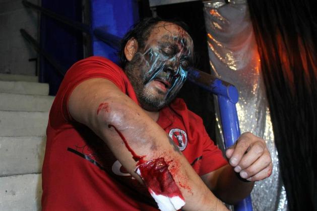Damián 666, mal herido del brazo derecho / Arena Naucalpan - 2 de dic. de 2012 / Imagen by IWRG Arena Naucalpan en Facebook